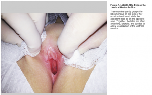 labial lift NEJM Nov 2014