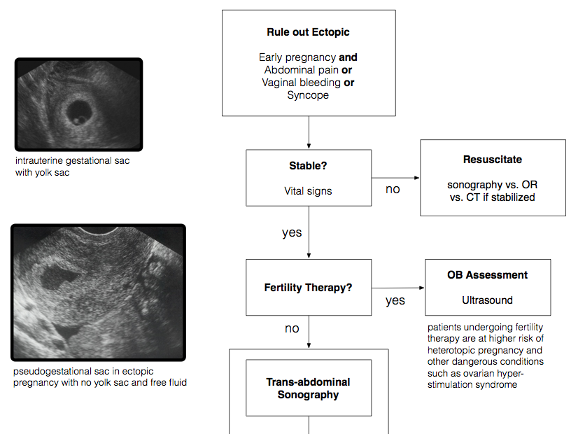Ectopic Algorithm Snippet